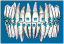 Braces on Orthodontic 3-D Digital Model of Teeth